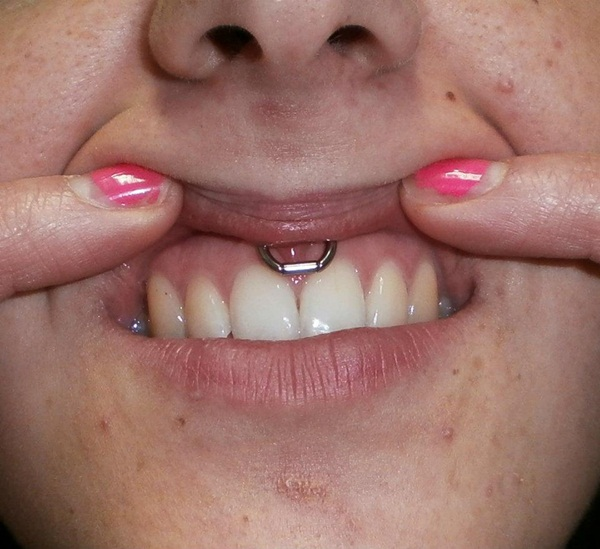 Smiley Piercing designs 44